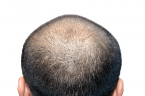 Cause of Male Pattern Baldness