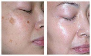 pigmentation face treatment